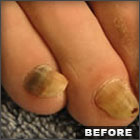 how to clear up nail fungus naturally